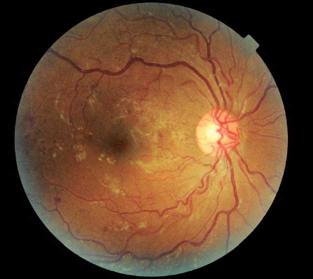 <p>Figure. Fundus photo of a 29-year-old patient with proliferative diabetic retinopathy that was discovered via teleretinal screening.</p>