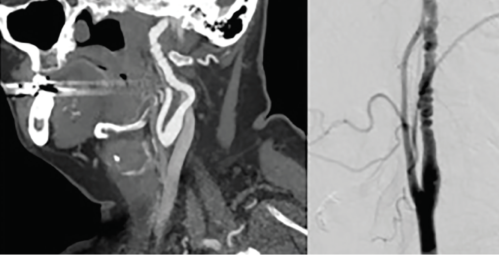 <p>Figure 2. Carotid Artery Fibromuscular Dysplasia. A CT angiogram (left) and digital subtraction angiogram (right) demonstratebeading appearance with alternating stenoses and dilatation consistent with fibromuscular dysplasia (FMD) in the midcervical internal carotid artery.</p>