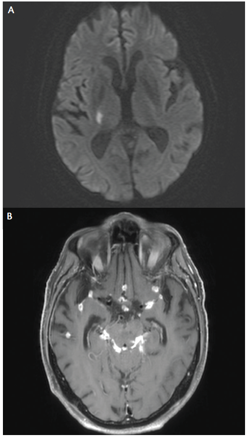 <p>Figure 3. Coccidioides Meningitis. Axial diffusion-weighted imaging sequence of brain magnetic resonance imaging shows acute infarction in the right internal capsule (A). This occurred in the setting of <em>Coccidioides</em> meningoencephalitis with other imaging findings such as nodular and plaque-like enhancement of the leptomeninges diffusely, particularly notable in the perimesencephalic cisterns (B).</p>