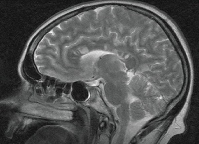 <p>Figure 1. Sagittal T2-weighted brain MRI in Susac syndrome demonstrating typical snowball lesions in the center of the corpus callosum. Neuroradiology, Alfried Krupp Hospital, Essen, Germany</p>