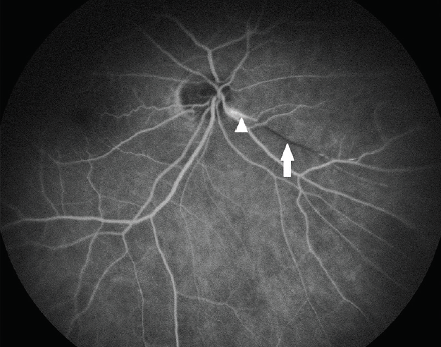 <p>Figure 2. Retinal fluorescein angiography of right eye of a person with Susac syndrome shows a branch retinal artery occlusion (arrow) and a hyperfluorescence (arrowhead) of a peripapillary nasal vessel. Department of Ophthalmology, University Hospital Bochum</p>
