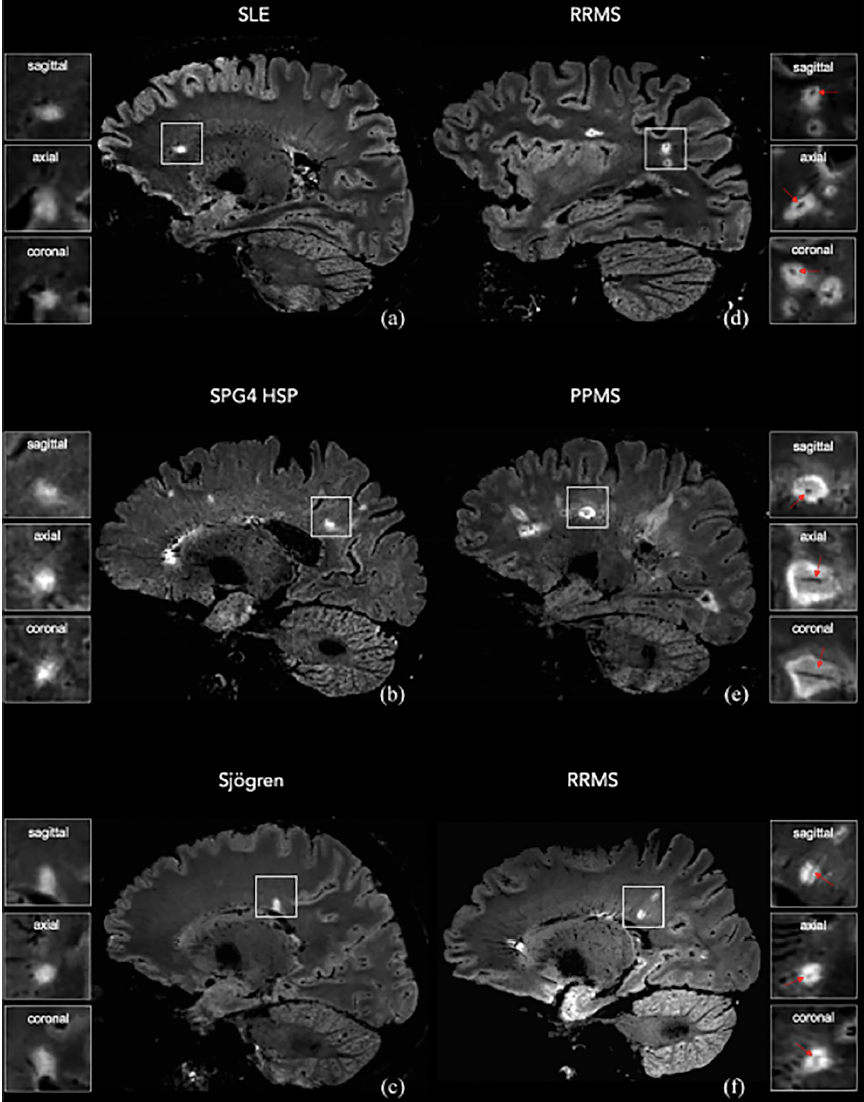 "<p>Figure. 3T Fluiid attenuated inversion recovery* (FLAIR*) MRI images in individuals who did and did not receive an MS diagnosis. Representative sagittal FLAIR* images of a woman who received a diagnosis of systemic lupus erythematosus (SLE), a woman who received a diagnosis of SPG4-spastic-paraparesis (SPG4 HSP), a woman who received a diagnosis of Sjögren disease (Sjögren), a man who received a diagnosis of relapsing-remitting MS (RRMS), a woman who received a diagnosis of primary progressive MS (PPMS;), and a man who received a diagnosis of RRMS. A central vein running through the lesion (arrows) is visible in the majority of MS lesions but is not typical in nonMS lesions. Reproduced with permission from Maggi P, Absinta M, Sati P, et al. The ""central vein sign"" in patients with diagnostic ""red flags"" for multiple sclerosis: a prospective multicenter 3T study. <i>Mult Scler</i>. 2019;Sep 19:1352458519876031.</p>"