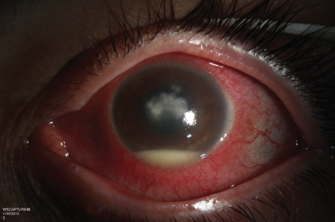 <p>Figure 1. Left eye at presentation. Deep infiltrate with a fluffy appearance, a small overlying corneal epithelial defect, 1 mm hypopyon, and superior satellite lesions.</p>
