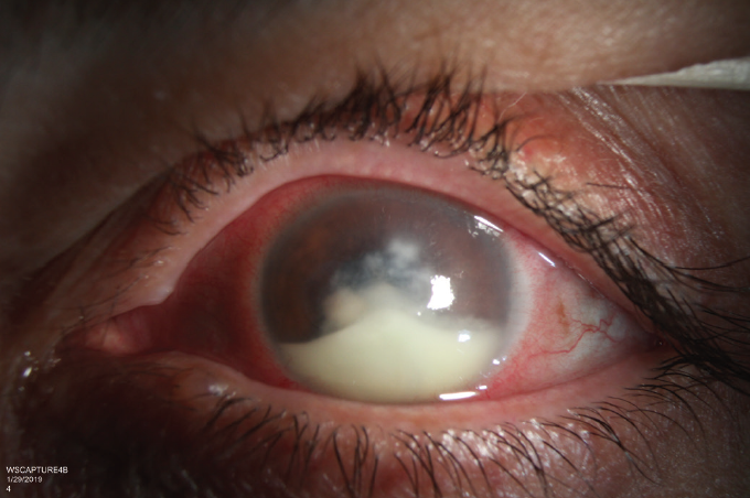 <p>Figure 2. After discontinuing antibacterial treatment to prepare for corneal biopsy, the patient presented with worsening of the central infiltrate and a larger hypopyon.</p>