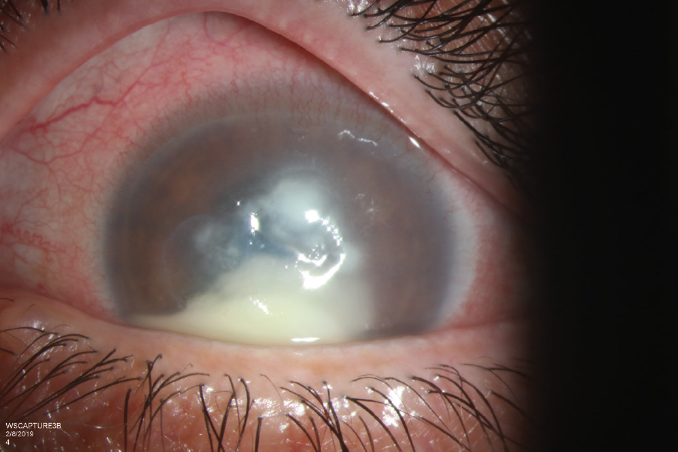 <p>Figure 3. Improvement of anterior chamber hypopyon. The patient still demonstrates significant infiltrate and central corneal epithelial defect.</p>