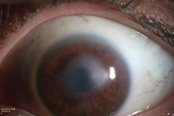<p>Figure 4. Once the infection was resolved, the patient was left with a central stromal scar impairing her vision to 20/400 OS.</p>