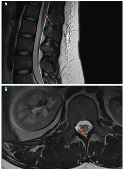 <p>Figure 2. Spinal cord lesion in sagittal (A) and transverse (B) planes in antimyelin oligodendrocyte glycoprotein (MOG) antibody-associated disease.</p>