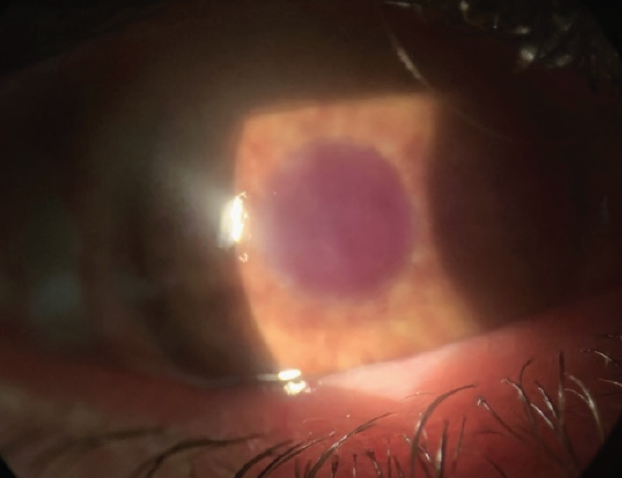 <p>Figure 2. A disfigured eye fit with a soft prosthetic contact lens.<br />