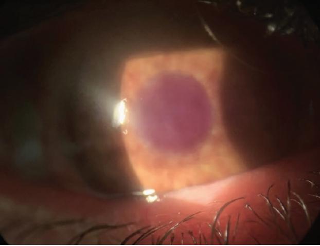 <p>Figure 2. A disfigured eye fit with a soft prosthetic contact lens.<br /> Photo courtesy of Melissa Barnett, OD, FAAO, FSLS, FBCLA.</p>