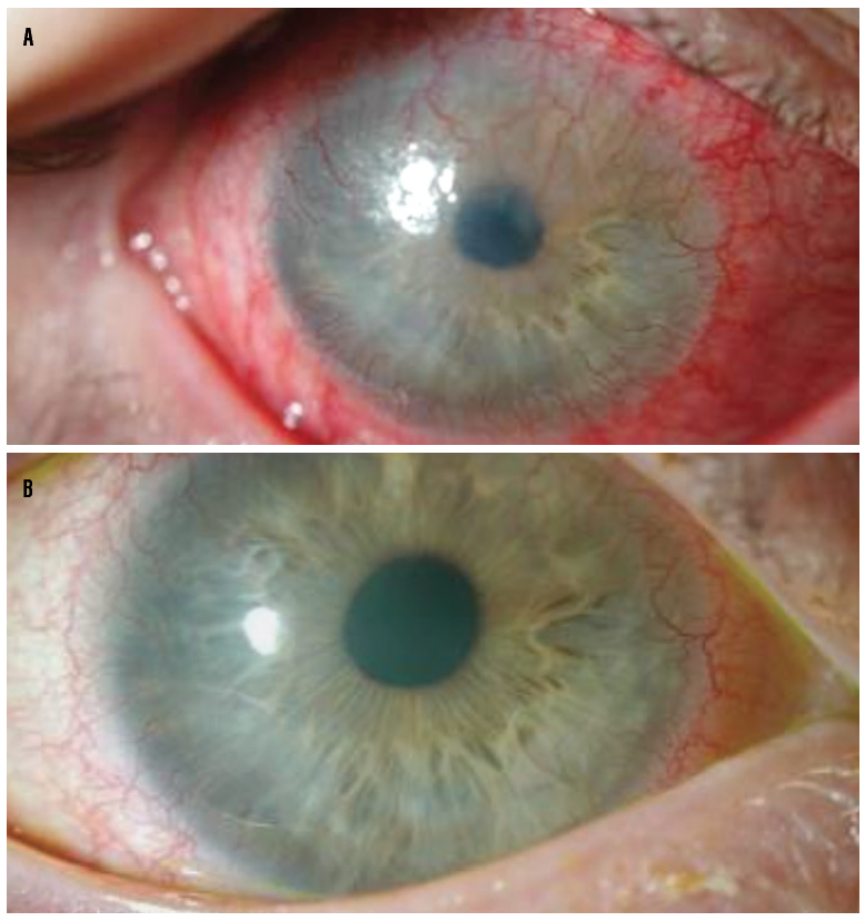 <p>Figure 1. Patient with LSCD secondary to medicamentosa and chronic ocular surface disease at baseline (A) and after 2 years of daily scleral lens wear (B). Note the resolution of inflammation and the significant regression of CNV.<br /> Photos courtesy od Alan Kwok, OD, of BostonSight</p>