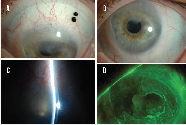 <p>Figure 2. Patient with history of LSCD of unknown etiology wearing a large-diameter, fluid-ventilated lens design (A and B) with adequate limbal clearance (C). No corneal or limbal edema is noted on removal (D).</p>