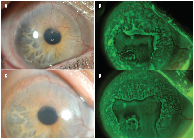 <p>Figure 2. Patient with LSCD at baseline (A and B) and at 4-year follow-up (C and D) after daily scleral lens wear. Note the stabilization of the corneal epithelium (B and D).<br /> Photos courtesy of Alan Kwok, OD, of BostonSight</p>