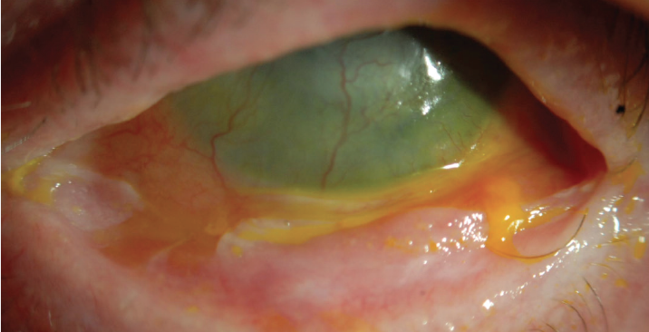 <p>Figure 3. Patient with ocular graft-versus-host disease, LSCD, and scarring of the inferior tarsal conjunctiva. The patient was a daily scleral contact lens wearer who was no longer able to tolerate daily lens wear and was referred for mucous membrane graft consultation.</p>