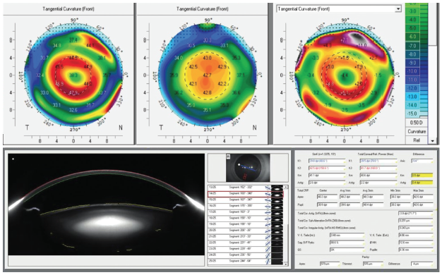 <p>Figure 2. Topographic and axial length (AL) analysis using Scheimpflug imaging (Pentacam AXL, Oculus Optikgeräte). Knowledge and understanding of AL can bring new perspectives in guiding treatment regimens for myopia management.</p>