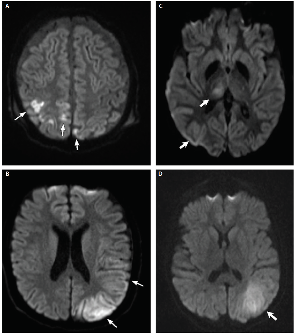 <p>Figure 1. Imaging Findings for Stroke-Like Episodes. Stroke-like episodes (SLE) in metabolic encephalopathy, lactic acidosis and stroke-like episodes (MELAS) (A, B) and congenital disorder of glycosylation type 1a (PMM2-CDG) (C, D). Separate instances of SLE in the same person are shown. Axial diffusion-weighted imaging shows bright areas (white arrows) indicating acute injury. Lesions are not restricted to vascular territories. For MELAS, both lesions are in cortical gray matter, but for PMM2-CDG both superficial and deep gray are involved.</p>