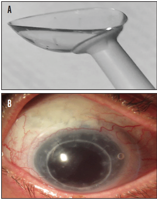 <p>Figure 3. Customized back surface scleral lens designed with corneoscleral topography (A) on an eye with a bleb (B).<br />