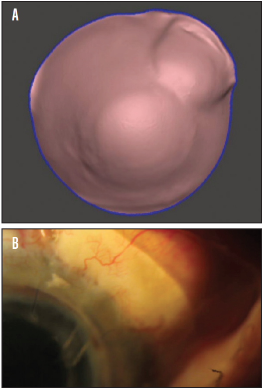 <p>Figure 4. Customized back-surface prosthetic designed with impression mold (A) on an eye with a bleb (B).<br />