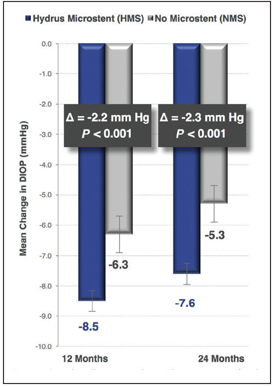 <p>Figure 2. At 12 months, modified diurnal IOP was reduced by 8.5 mm Hg in the Ivantis microstent eyes, and at 24 months, the reduction was 7.8 mm Hg.</p>