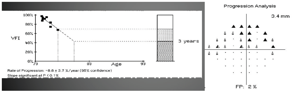 <p>Figure 2. Patients who are not compliant have visual field progression.<sup>10</sup><br />