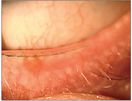 <p>Figure 2. This patient's line of Marx has migrated anteriorly and is now penetrating through his meibomian gland orifices.</p>
