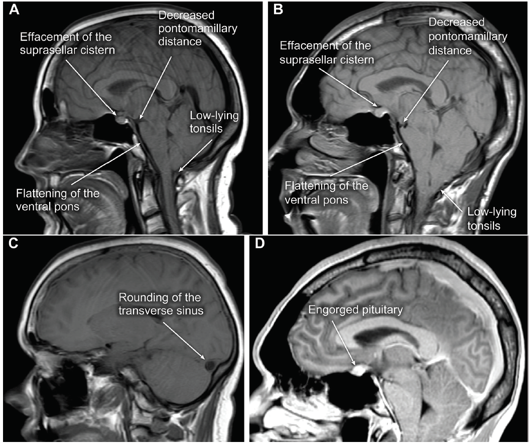 <p>Figure 2. Example of classic MRI brain findings in spontaneous intracranial hypotension (SIH). (A) Sagittal T1-weighted and (B) T2-weighted images demonstrating low-lying tonsils, decreased pontomedullary distance, flattening of the ventral pons, and effacement of the suprasellar cistern; (C) rounding of the transverse sinus; and (D) engorgement of the pituitary. These patients did not have subdural hematomas, which is another common finding, and the classic finding of pachymeningeal enhancement is not well appreciated on these sagittal images. Used with permission from Barrow Neurological Institute, Phoenix, AZ.</p>