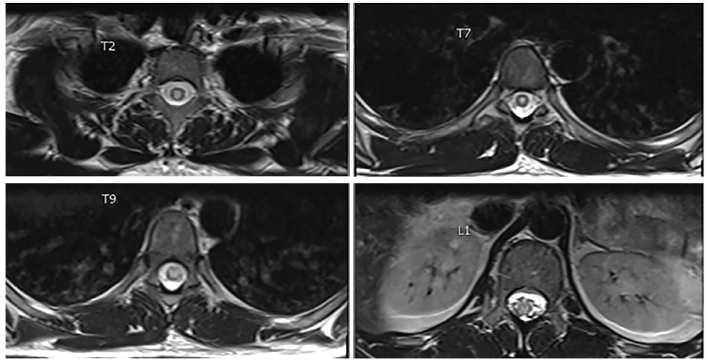 <p>Figure 2. Axial T2 postcontrast MRI showing central cord hyperintensity and enhancement of T2 through L1.</p>