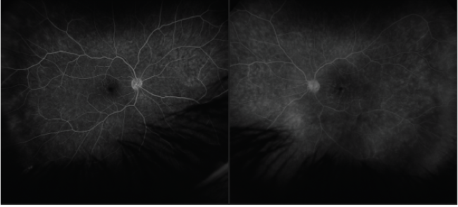 <p>Figure 3. Bilateral intermediate uveitis with edema as seen on fluorescein angiography in the left eye (left) is worse than right eye (right). Mild peripheral vascular hyperfluorescence is demonstrated.</p>