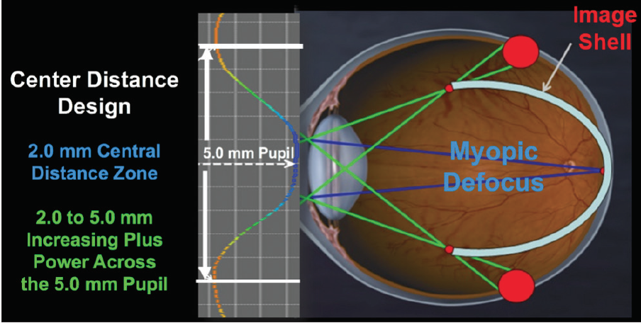 <p>Figure 1. This illustration demonstrates how a center-distance multifocal contact lens design results in myopic defocus.<br />