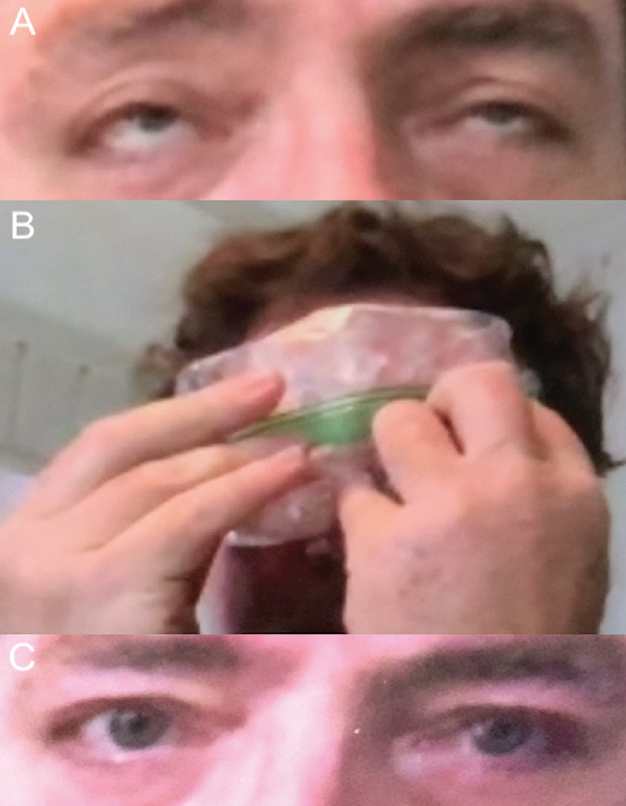 <p>Figure 2. Ice test in a patient with myasthenia gravis via telemedicine. Patient attempting sustained upgaze with bilateral upper eyelid ptosis prior to ice test showing bilateral fatiguability (A). Ice test performed by patient (B). Patient with improved ptosis after ice test (C).</p>