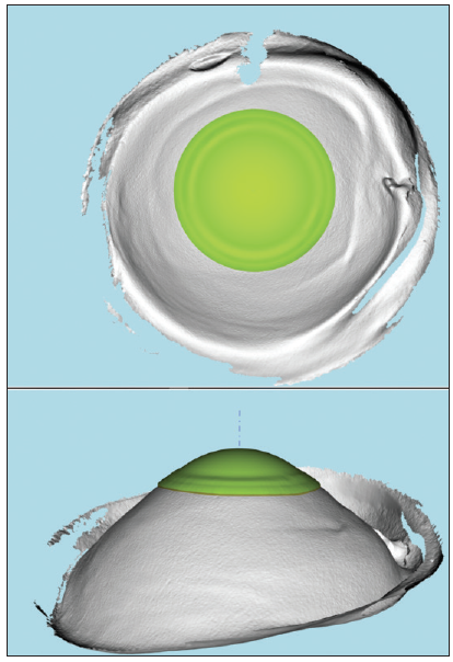 <p>Figure 1. A digitized impression created with EPP technology. The best-fit EyePrint RGP lens is highlighted in green.</p>