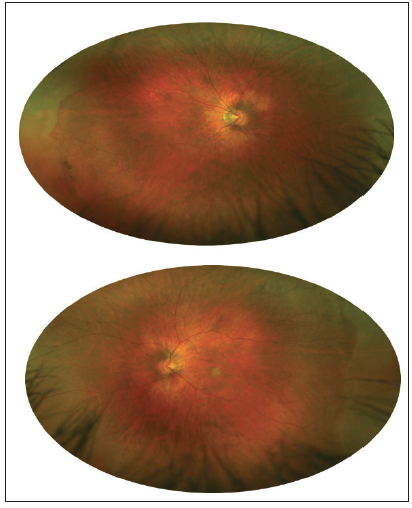 <p>Figure 2. Retinal images (Optos) of the right (top) and left (bottom) eyes. Pigmented lattice degeneration is evident in the far temporal periphery in the right eye. Benign whitewithout pressure is present in the periphery of each eye.</p>