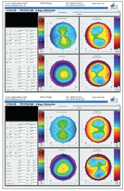 <p>Figure 3. Corneal topography via Scheimpflug photography of the right (top) and left (bottom) eyes. This information was used to assess corneal astigmatism, which allowed selection of a diagnostic fitting lens and necessary adjustments to design the final RGP lens.</p>