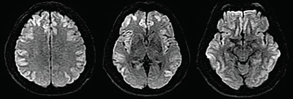 <p>Figure 1. Axial diffusion-weighted MRI sequences with diffuse bilateral diffusion restriction of the cortex, including the insular and cingulate cortices.</p>