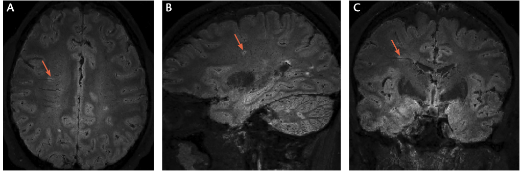 <p>Figure. The central vein sign on fluid‑attenuating inversion recovery* (FLAIR*) MRI.</p>