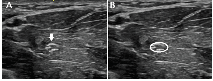 <p>Figure 1. Short-axis images of median nerve at the forearm. The median nerve (arrow, A) with the surrounding hyperechoic epineurium, is circled (B) to measure the cross-sectional area (CSA) of the nerve.</p>
