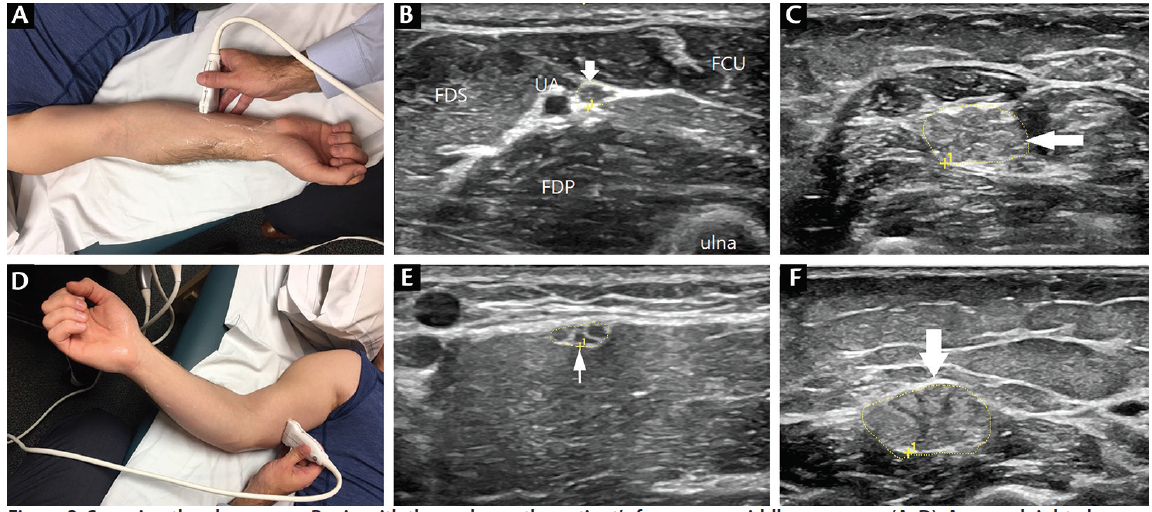 <p>Figure 3. Scanning the ulnar nerve. Begin with the probe on the patient's forearm or middle upper arm (A, D). A normal right ulnar nerve (CSA=8 mm<sup>2</sup>) (B) adjacent to the ulnar artery in the forearm can be compared to the enlarged left ulnar nerve (CSA=55 mm<sup>2</sup>) (C) in longstanding chronic inflammatory demyelinating polyneuropathy (CIDP). A normal right ulnar nerve (CSA=11 mm<sup>2</sup>) in the midupper arm (E) can be compared to a significantly enlarged left ulnar nerve (CSA=75 mm<sup>2</sup>) in longstanding CIDP. Abbreviations: CSA, cross-sectional area; FCR, flexor carpi radialis; FDP, flexor digitorum profundus; FDS, flexor digitorum superficialis; UA, ulnar artery.</p>