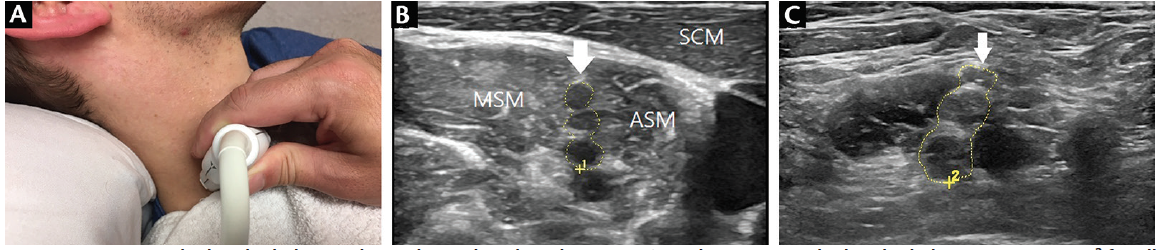 <p>Figure 4. Scanning the brachial plexus. The probe is placed on the patient's neck (A) to scan the brachial plexus (CSA=25 mm<sup>2</sup> for all the trunks together; B) located between the medial scalene muscle (MSM) and anterior scalene muscle (ASM) which are deep to the sternocleidomastoid muscle (SCM) and can be compared to an enlarged right brachial plexus (CSA=90 mm<sup>2</sup>) in multifocal acquired demyelinating sensory and motor neuropathy (MADSAM) (C). Abbreviation: CSA, cross-sectional area.</p>