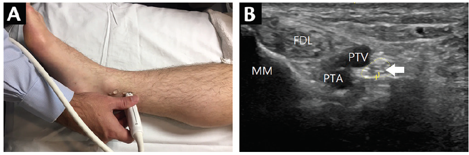 <p>Figure 5. Scanning the tibial nerve. Probe placement (A) for scanning and a normal tibial nerve (CSA=12 mm<sup>2</sup>) (B), which is most easily visualized at the ankle posterior to the medial malleolus located posterior to the posterior tibial vein and artery (PTV, PTA) near the medial malleolus (MM) and flexor digitorum longus (FDL). Abbreviation: CSA, cross-sectional area.</p>