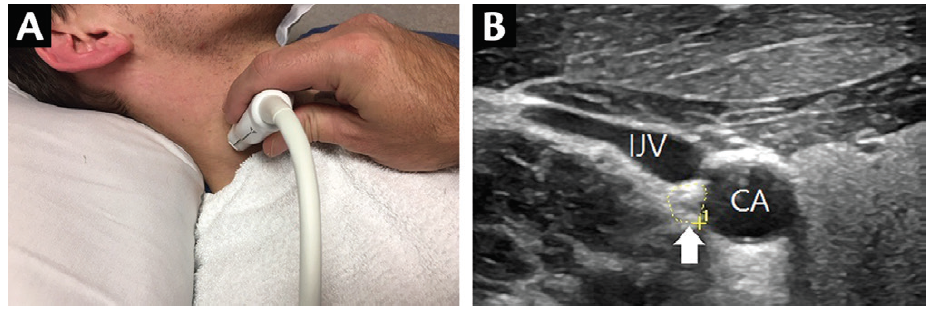 <p>Figure 6. Scanning the vagus nerve. Probe placement (A) and scan of a normal vagus nerve (CSA=8 mm<sup>2</sup>) located in the posterior angle formed by the internal jugular vein (IJV) and carotid artery (CA; B). Abbreviation: CSA, cross-sectional area.</p>