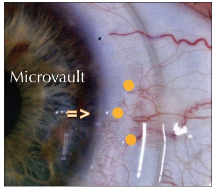 <p>Figure 2. At present, a single MicroVault can be incorporated into a Zenlens scleral lens.</p>
