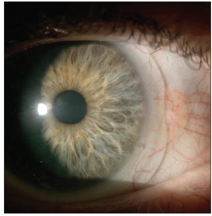 <p>Figure 3. The CPR manufacturing process produces hybrid designs with characteristics of both notching and vaulting for Onefit and Onefit Med scleral lenses.</p>