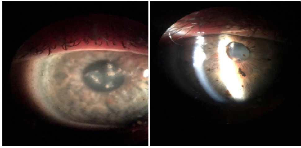 <p>Figure 1. Note the diffuse foreign bodies embedded throughout the ocular structures after a firework exploded near the patient's face.</p>