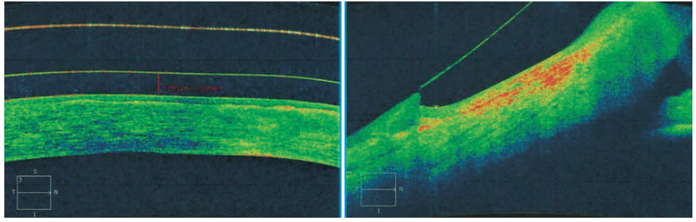 <p>Figure 2. OCT imaging showing proper central corneal clearance and peripheral landing of the scleral lens.</p>