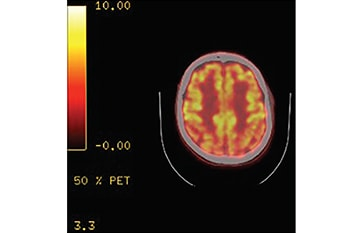 Symptoms of Lewy Body Dementia Induced by Herpes Zoster Encephalitis image