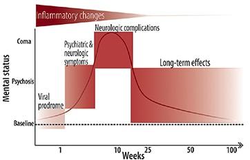 Anti-<i>N</i>-Methyl D Aspartate Receptor Encephalitis image