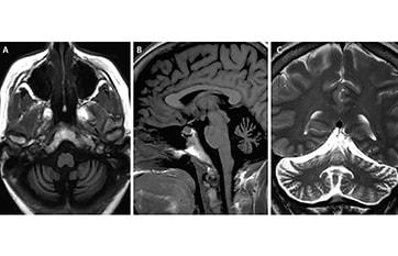 Immune-Mediated Cerebellar Ataxias image