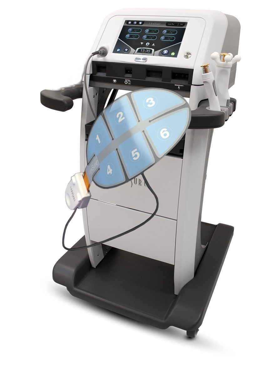 New from Cynosure: Meet FlexSure image
