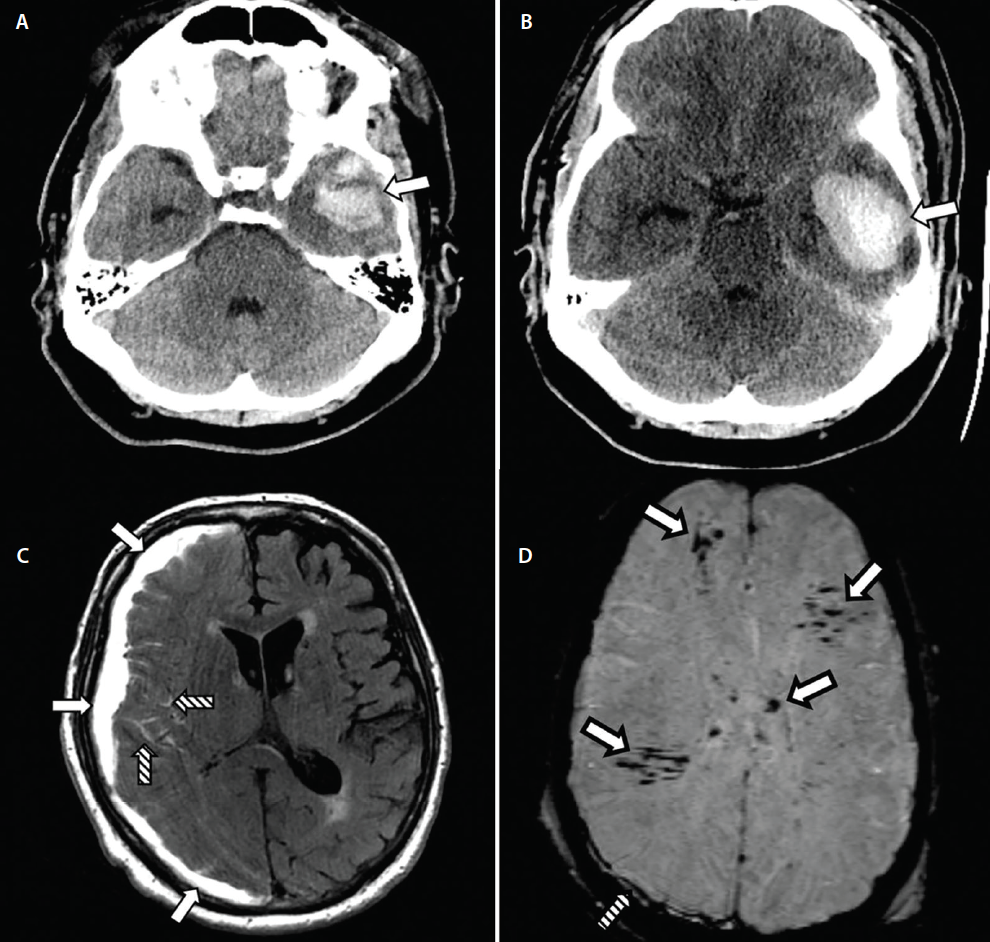 <p>Figure 3. Cerebral contusion expansion on CT with subdural hematoma (SDH), subarachnoid hemorrhage (SAH), and diffuse axonal injury (DAI). Noncontrast CT shows a left temporal contusion (arrow, A). Repeat CT 8 hours later showed expansion of the left temporal contusion, now with mild mass effect (arrow, B). Uninfused MRI demonstrating a primarily-subacute SDH with hyperintense signal on fluid-attenuated inversion recovery (FLAIR)-MRI (solid arrows, C). A traumatic SAH is also seen in the sulci of the right frontal lobe on this study (striped arrows, C). Susceptibility weighted imaging (SWI) also shows scattered signal consistent with DAI (solid arrows, D). A small subdural hematoma is also seen (striped arrow, D).</p>