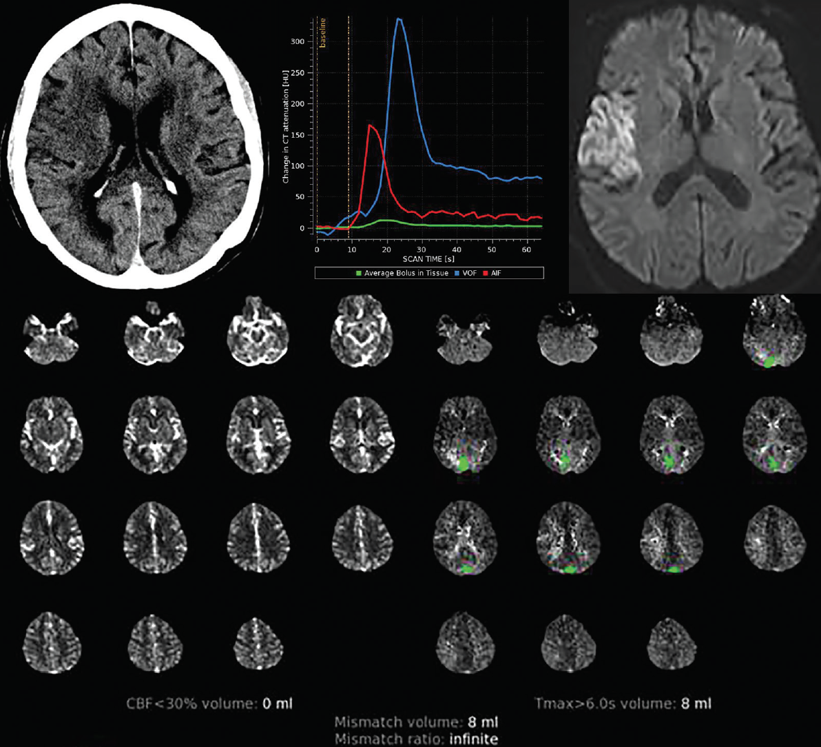 <p>Figure 8. Reperfusion Pitfall. Left-sided deficits were present clinically and the noncontrast CT identified a large right middle cerebral artery (MCA) territory infarct (A). The patient was transferred to the stroke center, and a technically satisfactory perfusion study (B) showed no significant deficits on initial perfusion maps (D). Follow up MRI showed a completed infarct (C). This person also received intravenous tissue plasminogen activator (IV tPA) during transfer to the stroke center, and this likely represents a case of reperfusion.</p>
