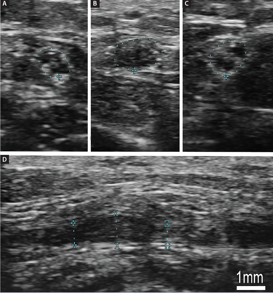 <p>Case Figure. Superficial radial nerve (SRN) distal to site of injury (A) with enlarged, hypoechoic fascicle (B). Distal to the SRN site of injury (C), an injury is also observed that has an enlarged hypoechoic fascicle when viewed longitudinally (D).</p>